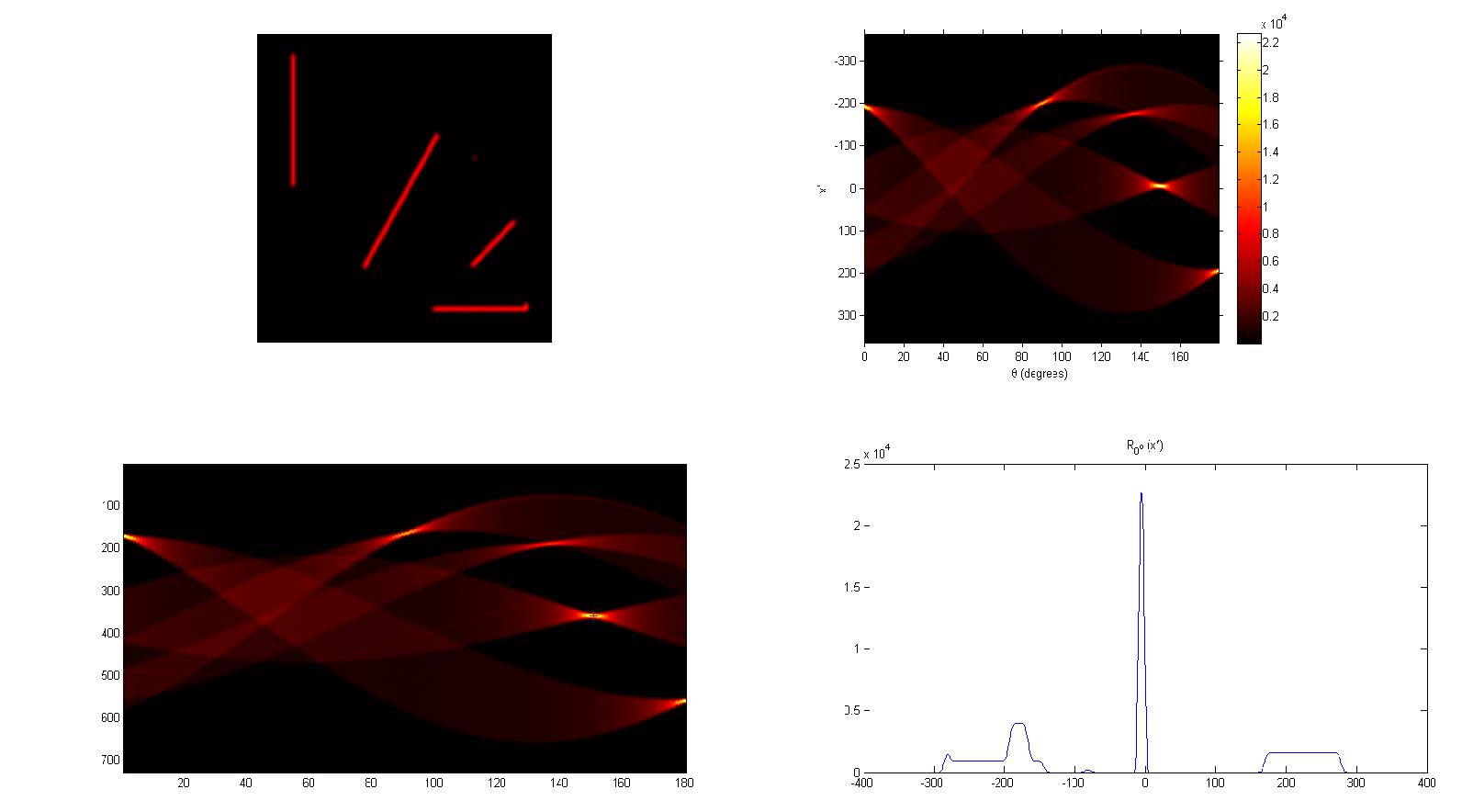 Line width detection in Matlab   actin io